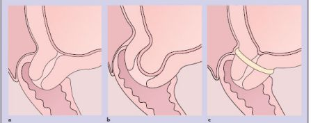 Bạn nên thường xuyên đi khám định kỳ theo chỉ định để nắm bắt rõ các thay đổi ở chiều dài tử cung